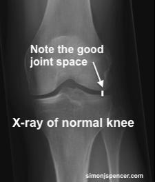Osteoarthristis_3