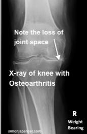 Osteoarthristis_4