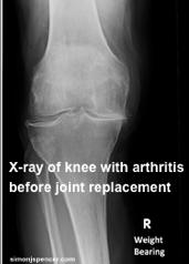 Osteoarthristis_5